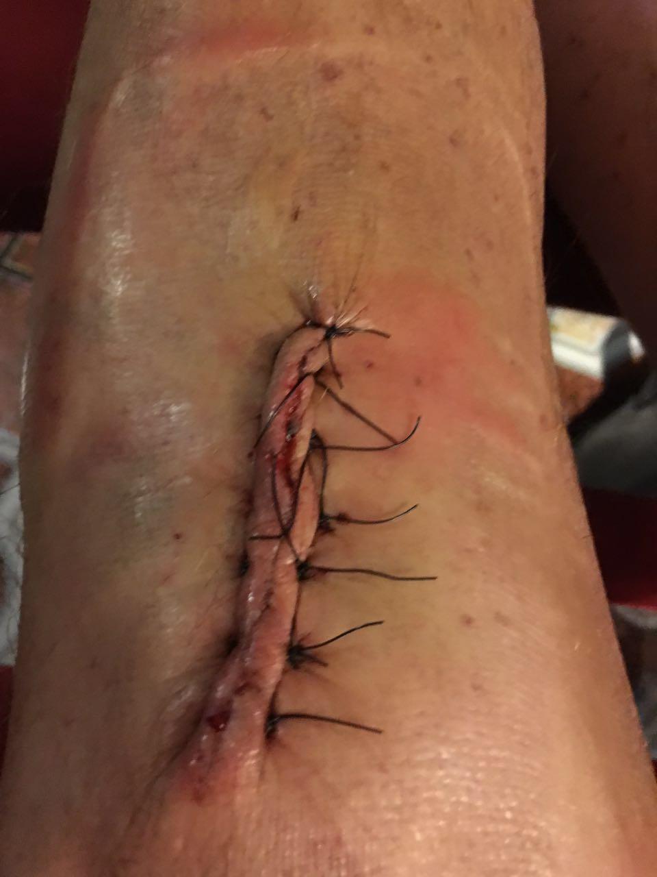 Tim's latest surgery